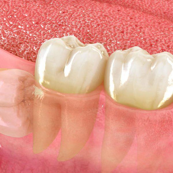 CIRUGIA diente incluído)