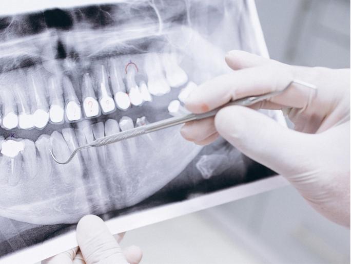 Destacado Cirugía e implantes